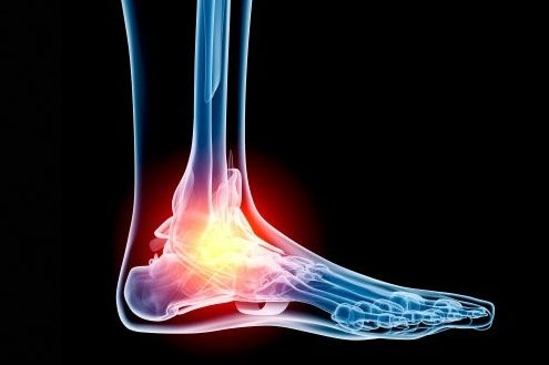 high-ankle-sprains-702x334